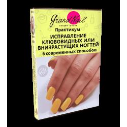 Исправление Клювовидных или Внизрастущих ногтей 6 Современных Способов